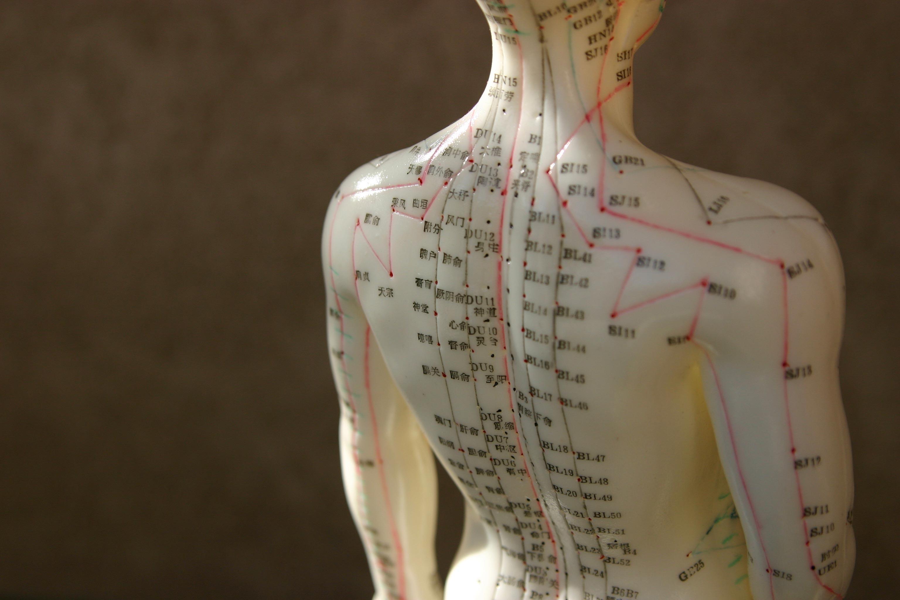 Akupunktur-Bild